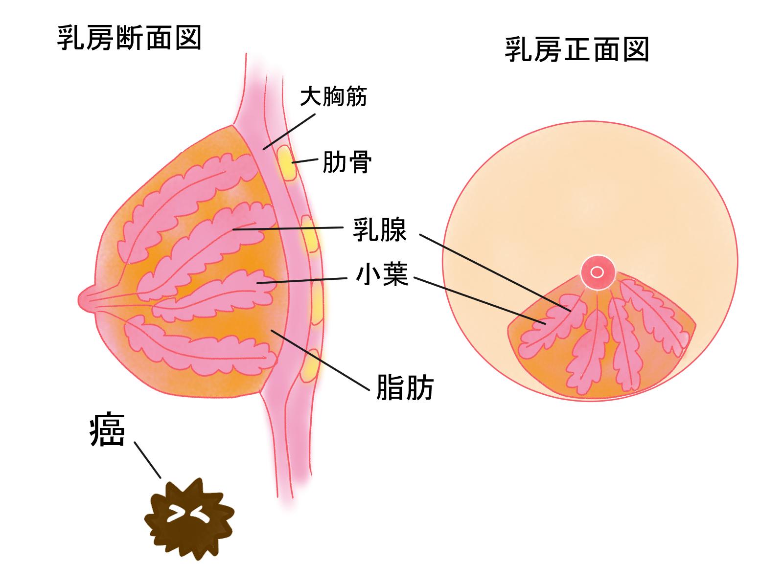 乳がん 炎症 性