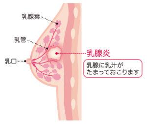 乳房 しこり 乳腺炎