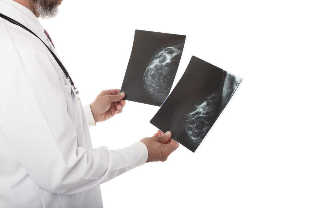 乳がん 症状 しこり 画像診断