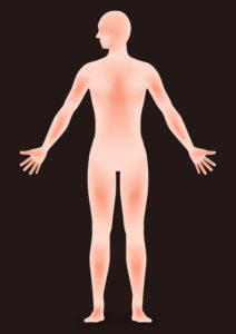 乳がんで痛みを伴わない温熱療法