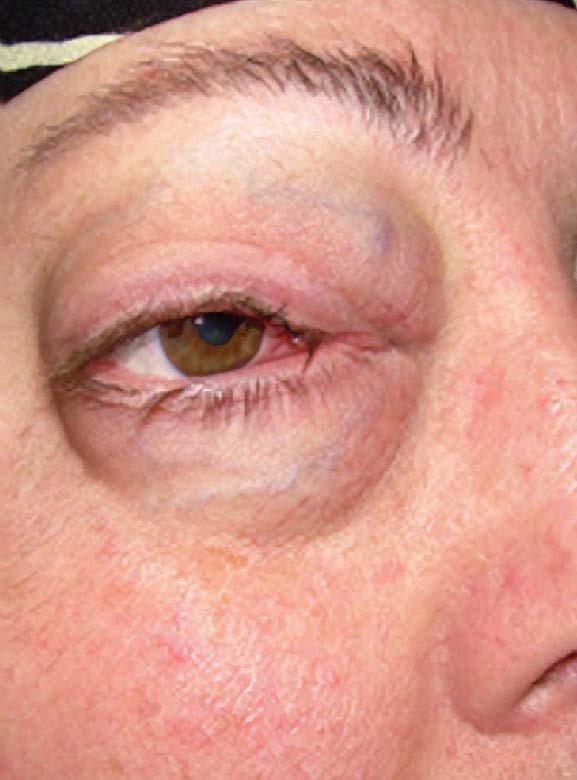 右眼球(⻘)と視神経(緑)を避けた線量分布の作成