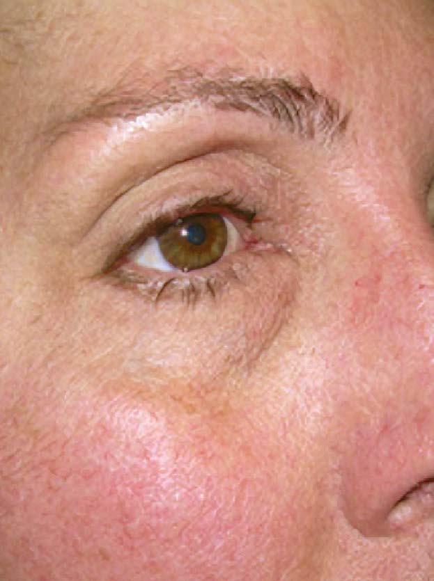 治療後5日 眼球突出と複視の改善