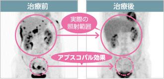 病名:大腸癌術後再発&腹膜播種