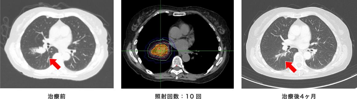 治療前 照射回数:10回 治療後(4か月)