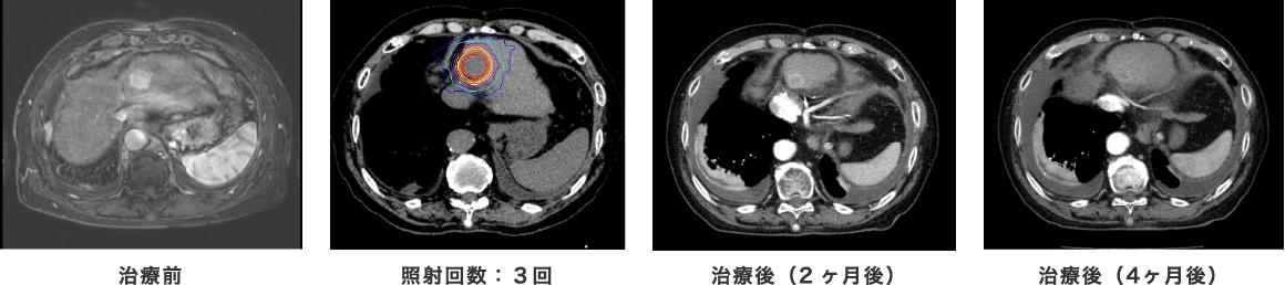 治療前 照射回数:3回 治療後(2か月)